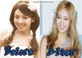 Hyoyeon-SNSD-Plastic-Surgery-Before-and-After-Photo
