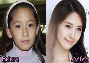 Yoona-SNSD-Plastic-Surgery-Before-and-After-Photos